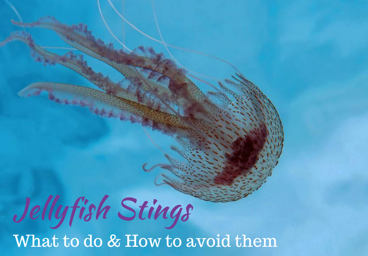 Jellyfish stings - How to treat them